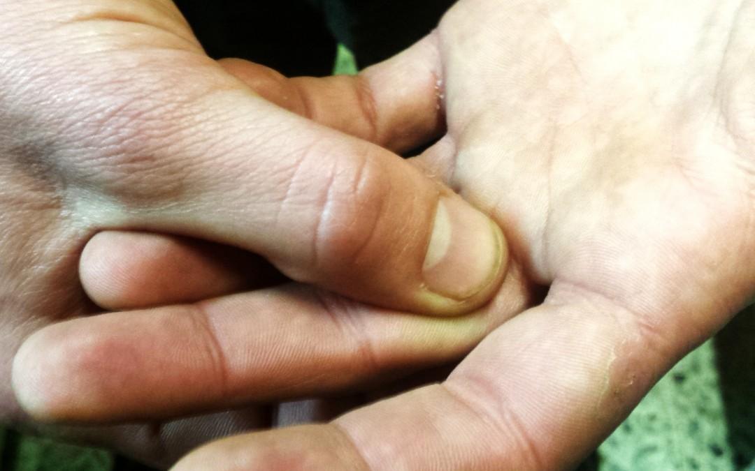 ¡Me duele el dedo! (II)