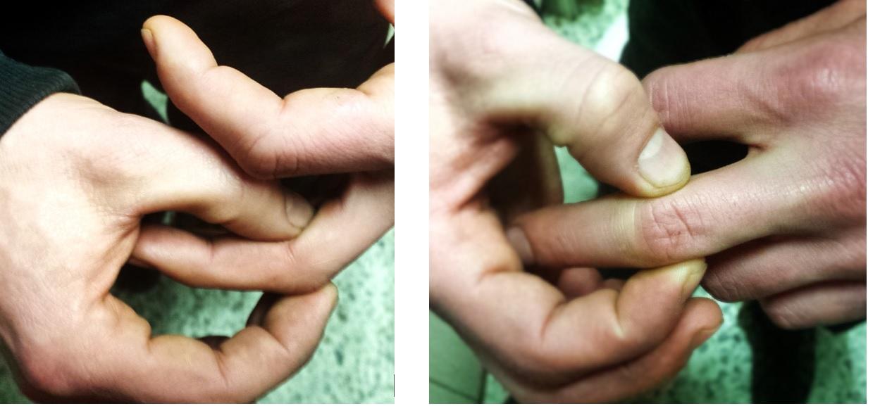 Patologías típicas de mano Archivos - Hand Therapy BCN
