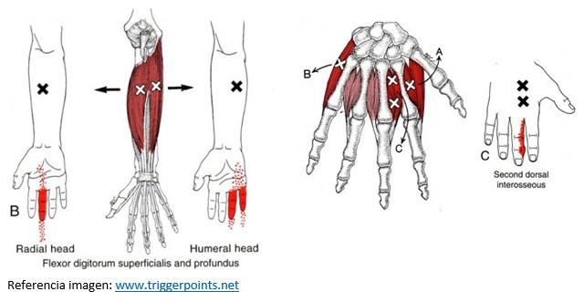 8. Trigger points