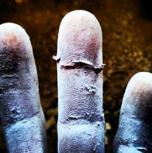 4. ferida pell